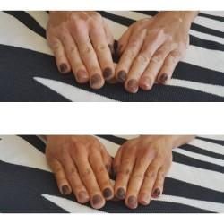 Mimetizzazione delle mani di vitiligine prima e dopo