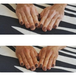 Camouflage vitiligo hands before after