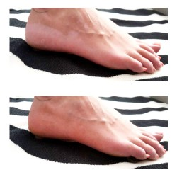 Camouflage vitiligo feet before after