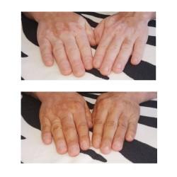 Camuffamento delle mani di vitiligine prima e dopo