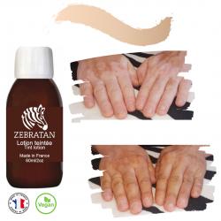 Camouflage vitiligo avant après