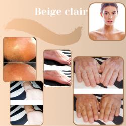Camouflage vitiligo feet before after