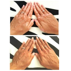 camouflage vitiligo hands lotion before after