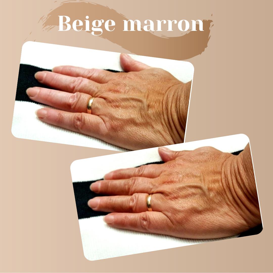 autobronzant-vitiligo-avant-après