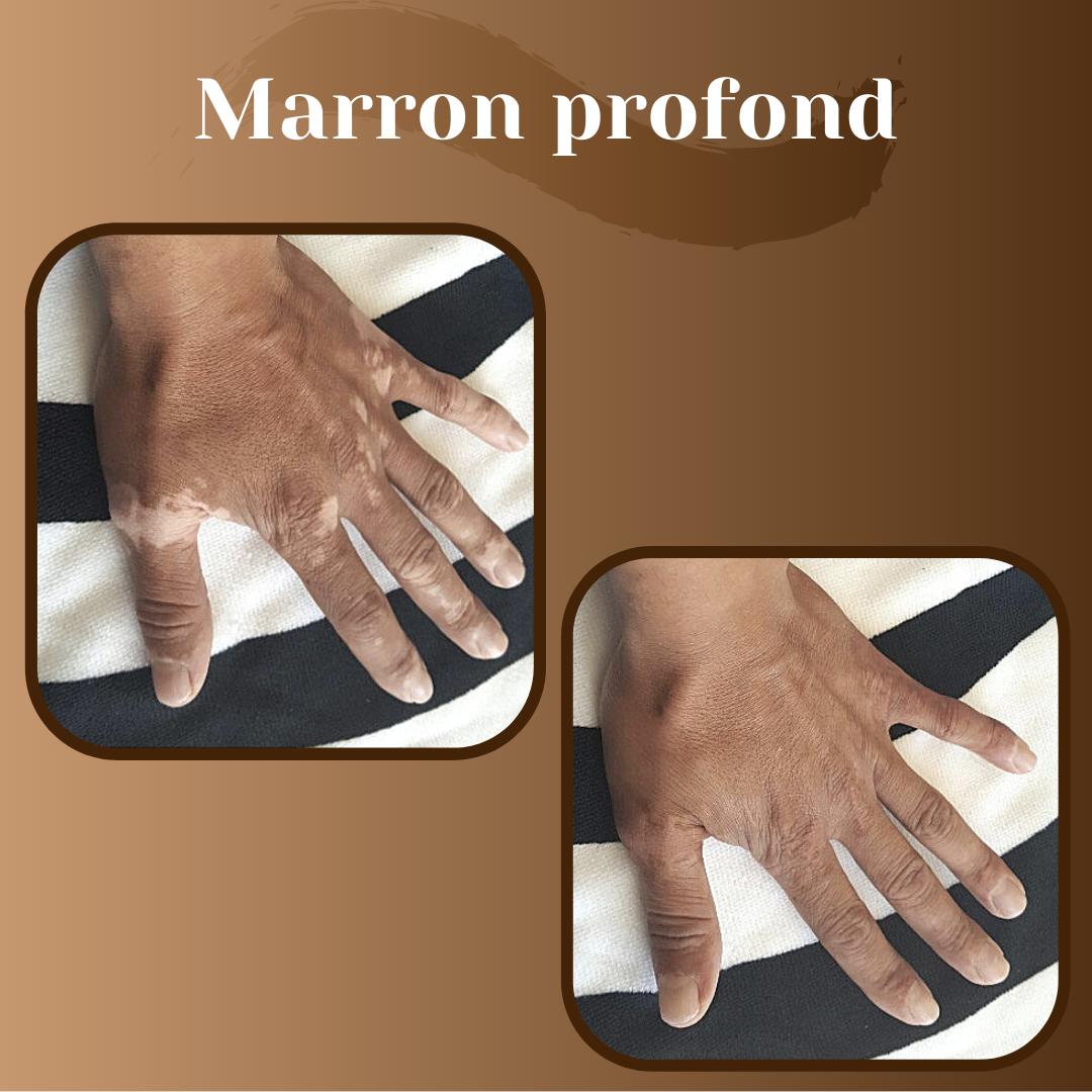 maquillage-vitiligo-avant-après