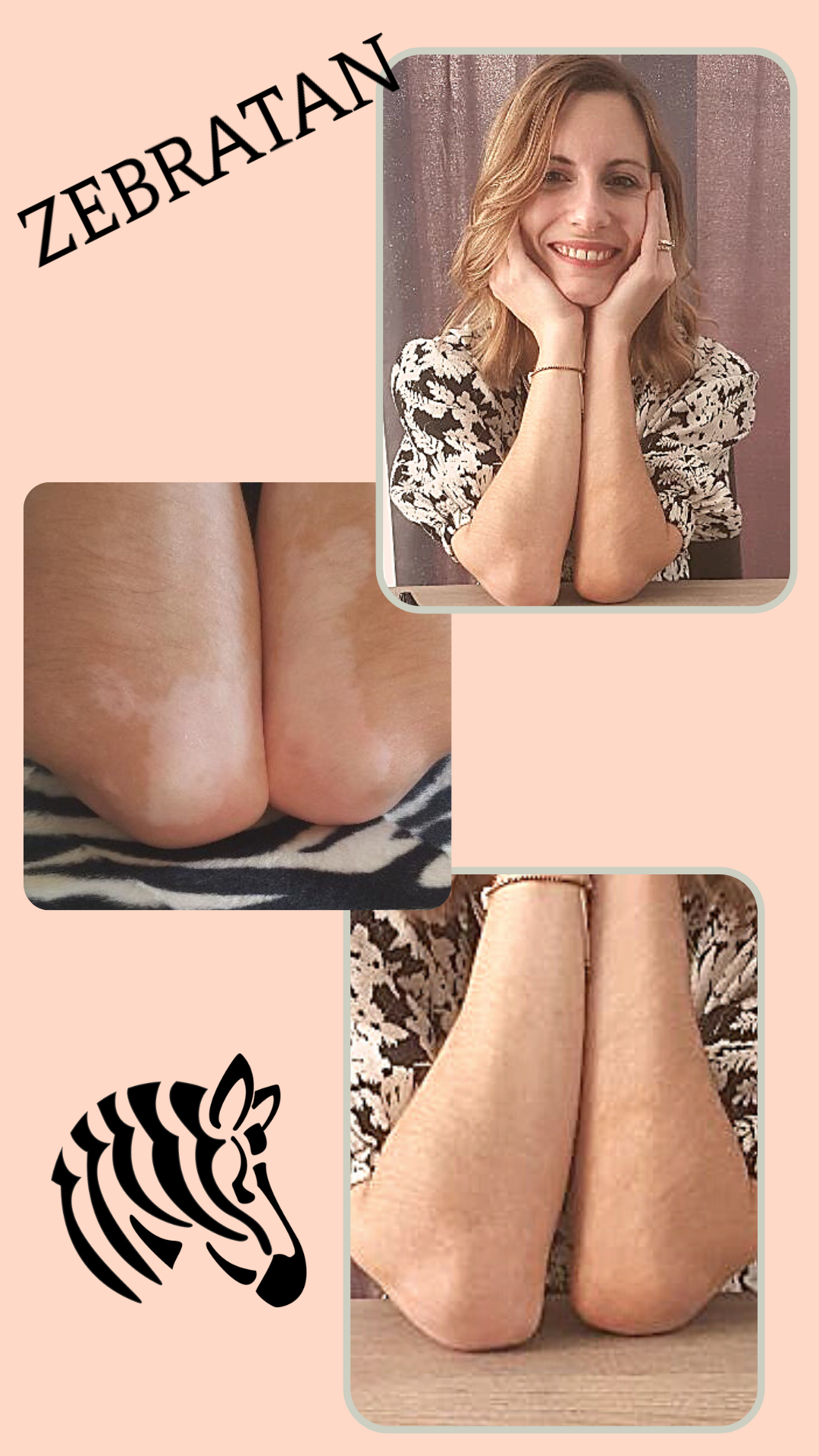 vitiligo avant après