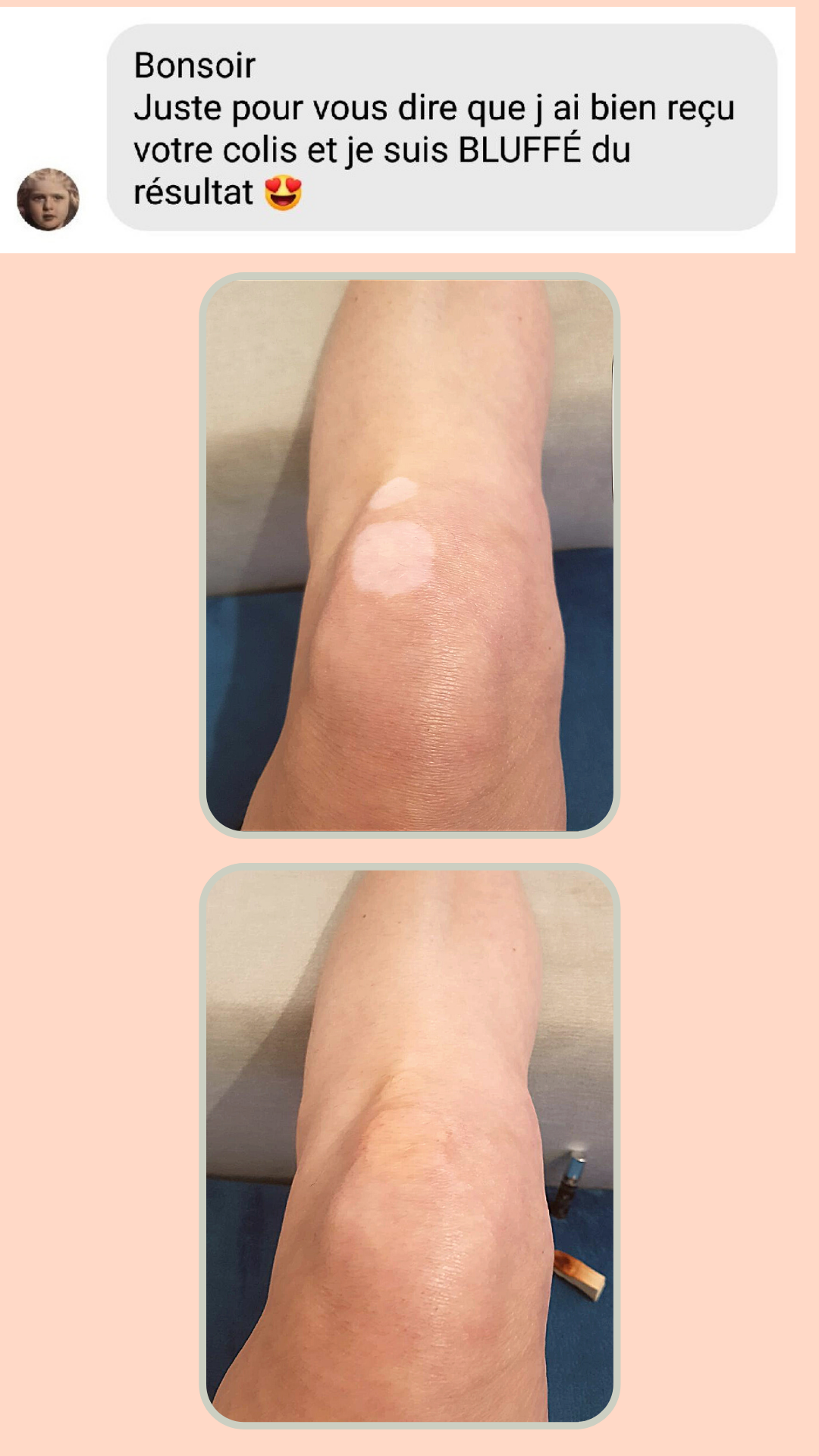 témoignage vitiligo