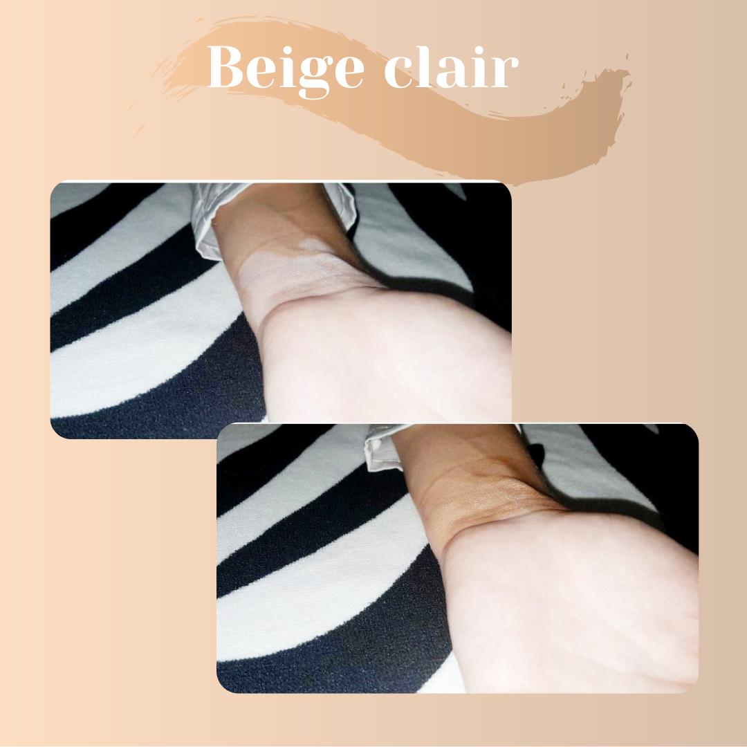 camouflage-vitiligo-avant-après